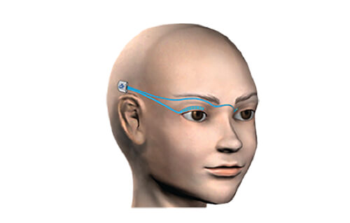BLINK PROSTHESIS